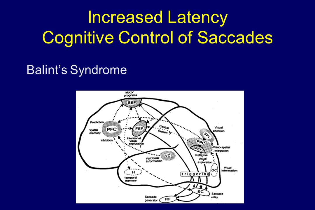 Increased Latency Cognitive Control of Saccades