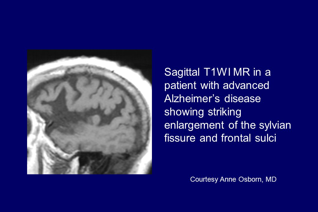 Sagittal T1WI MR in a patient with advanced Alzheimer's disease showing striking enlargement of the sylvian fissure and frontal sulci