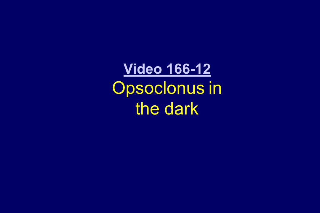 Video 166-12 Opsoclonus in the dark