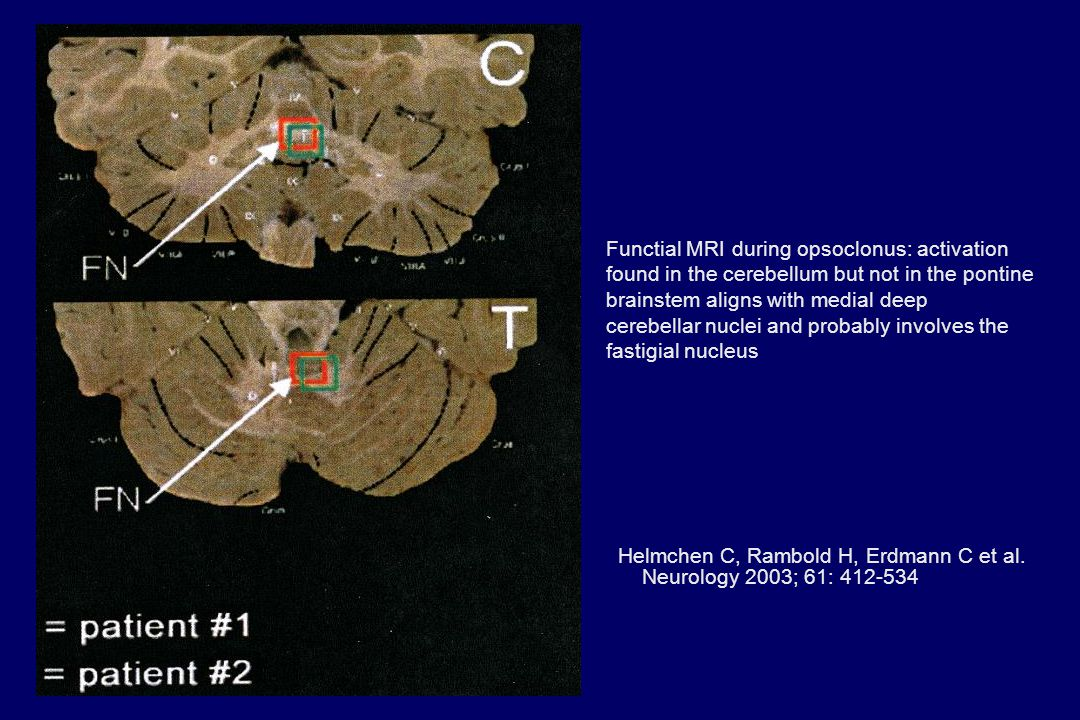 Functial MRI during opsoclonus: activation