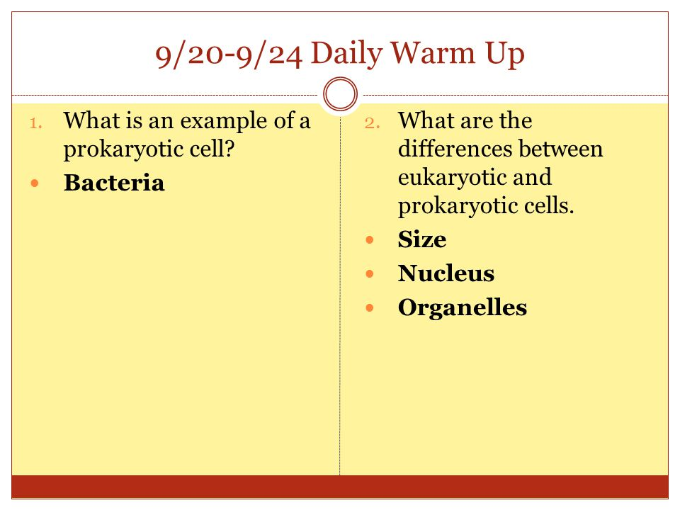 9/20-9/24 Daily Warm Up What is an example of a prokaryotic cell