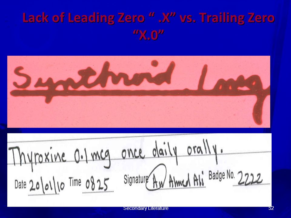 Lack of Leading Zero .X vs. Trailing Zero X.0