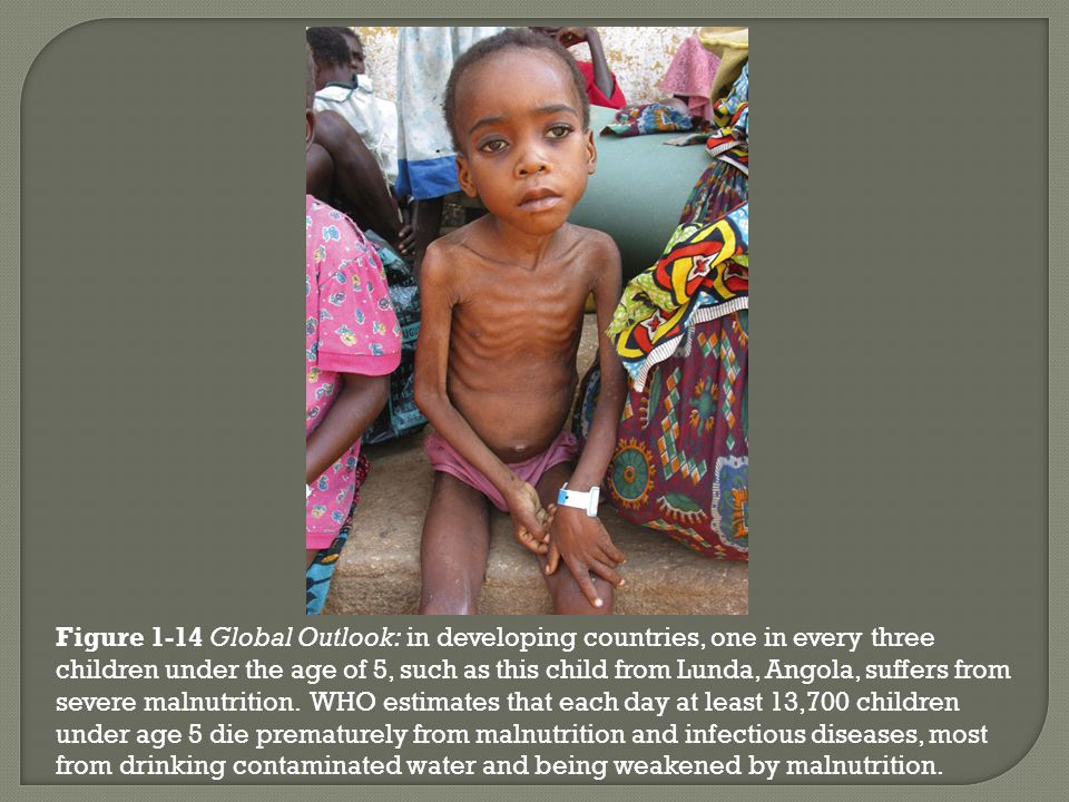 Figure 1-14 Global Outlook: in developing countries, one in every three children under the age of 5, such as this child from Lunda, Angola, suffers from severe malnutrition.