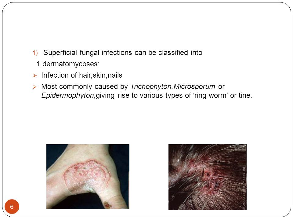 Superficial fungal infections can be classified into
