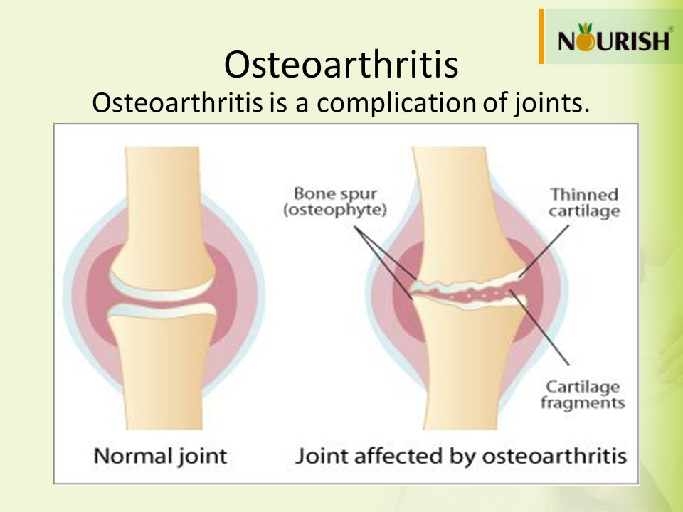 Osteoarthritis is a complication of joints.