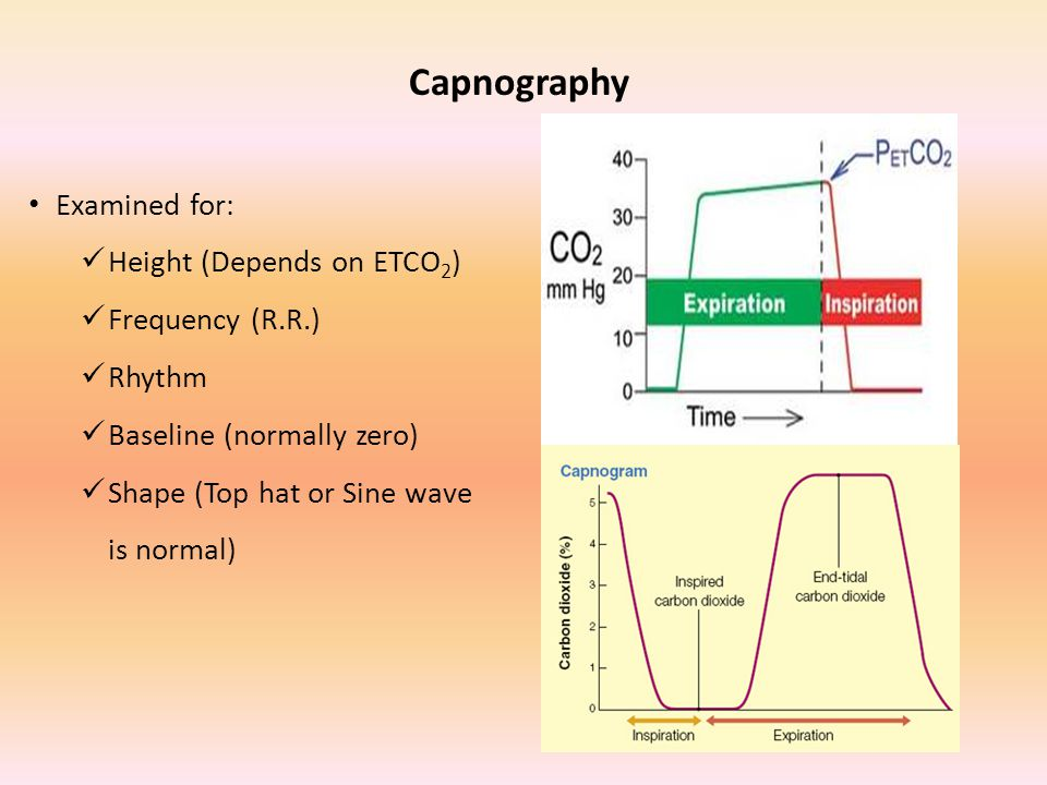 Capnography Examined for: Height (Depends on ETCO2) Frequency (R.R.)