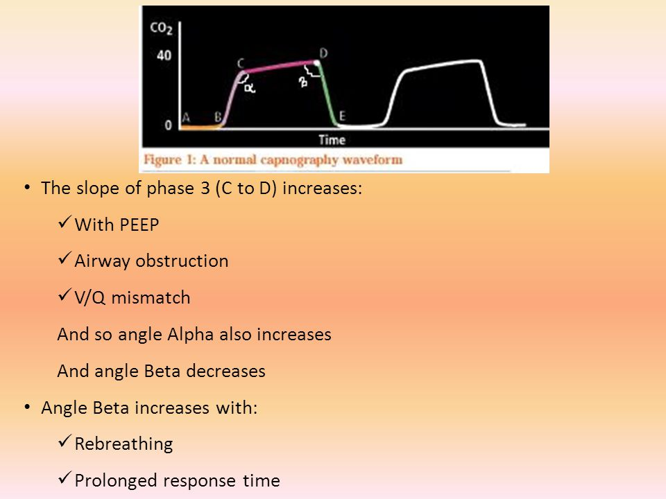 The slope of phase 3 (C to D) increases: