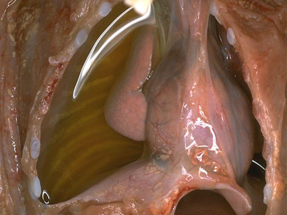 Serous effusion of the right pleural cavity