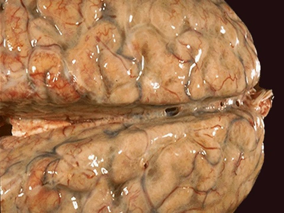 Suppurative inflammation of the meninges.