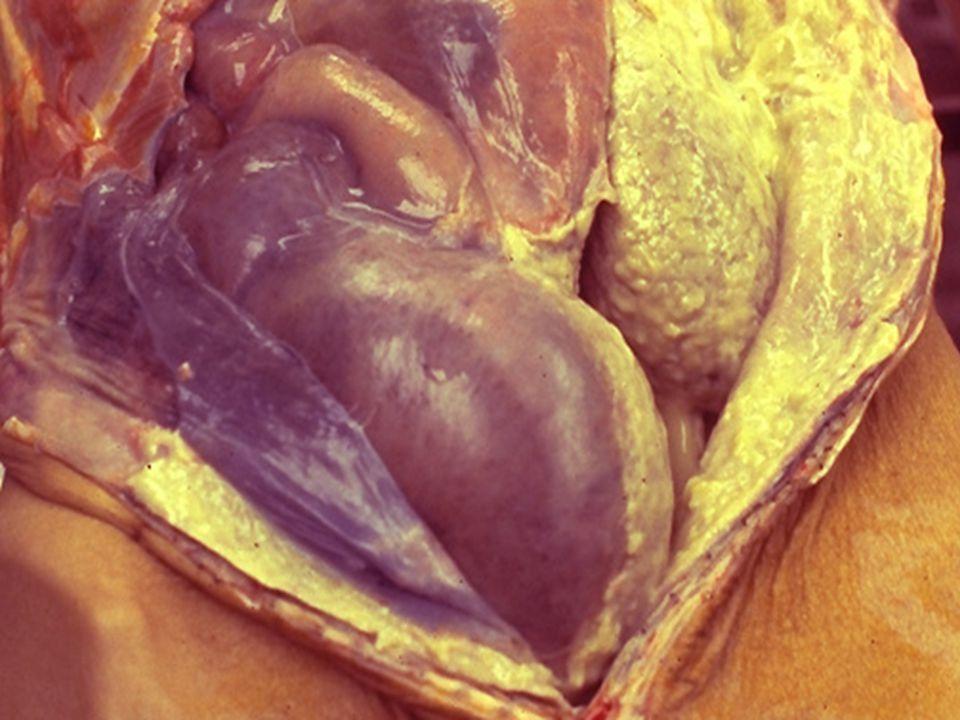 Suppurative inflammation of the peritoneum