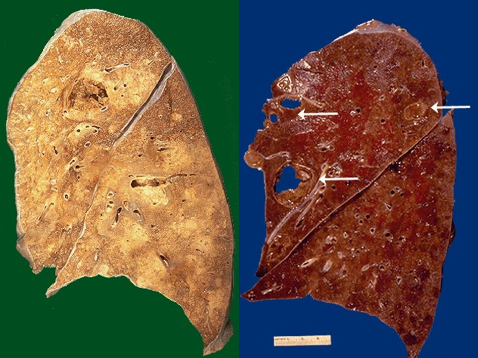 Abscesses of the lung.