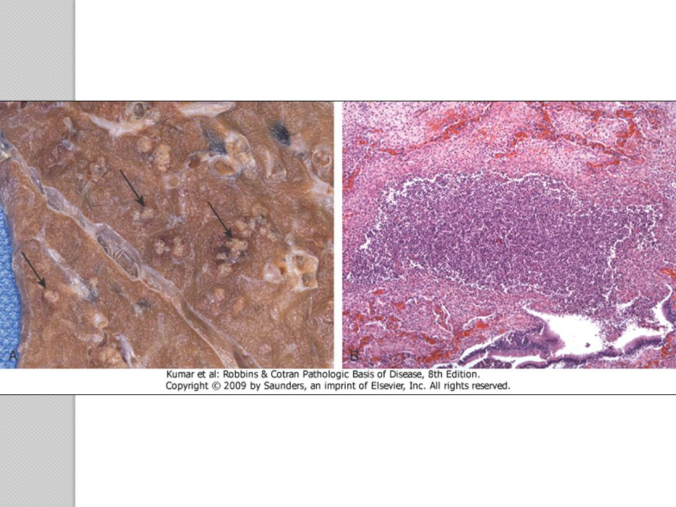 Figure 2-20 Purulent inflammation