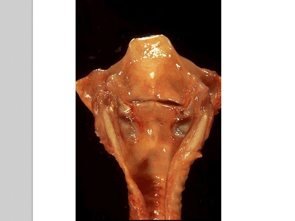 Laryngeal ulceration.