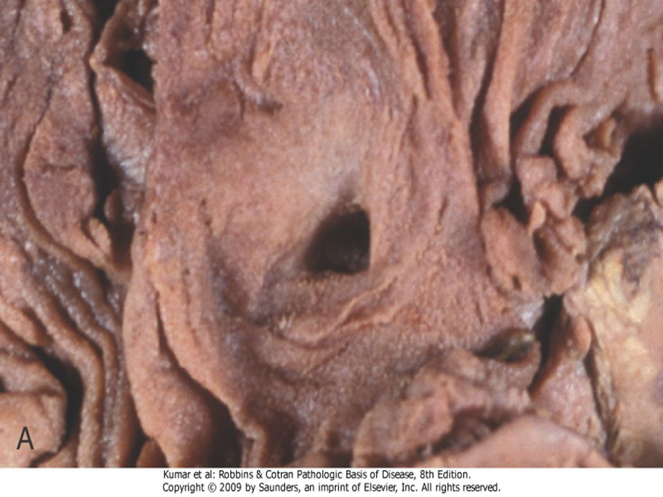 Figure 2-21 The morphology of an ulcer. A, A chronic duodenal ulcer