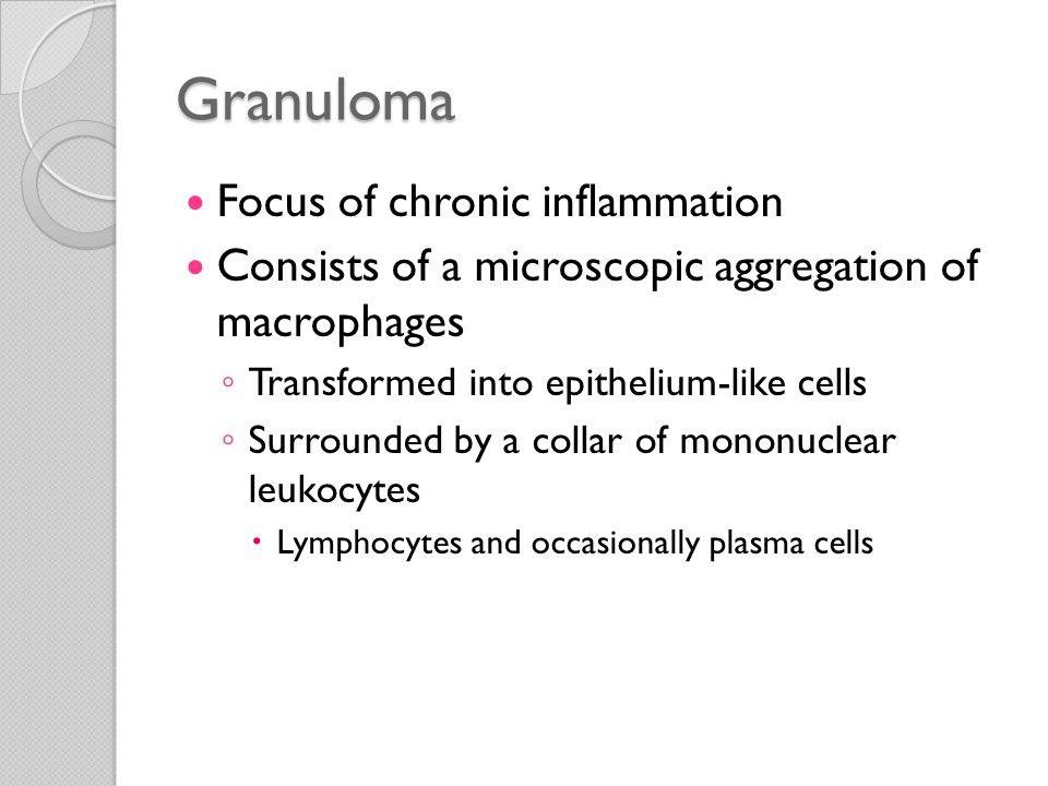 Granuloma Focus of chronic inflammation