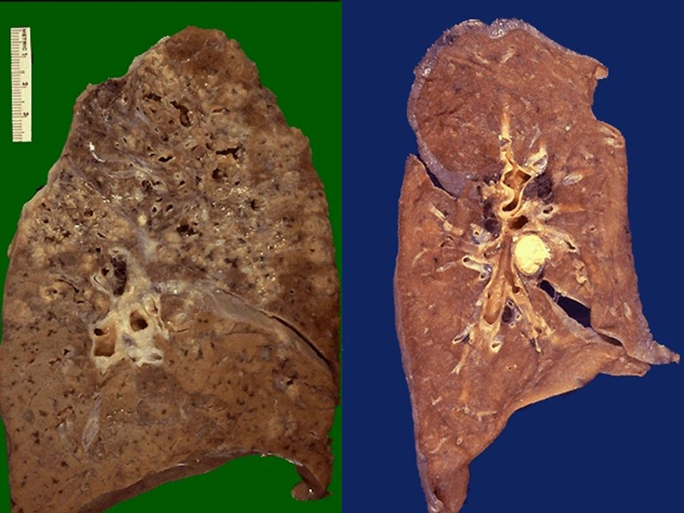 Gross photograph of granulomas.