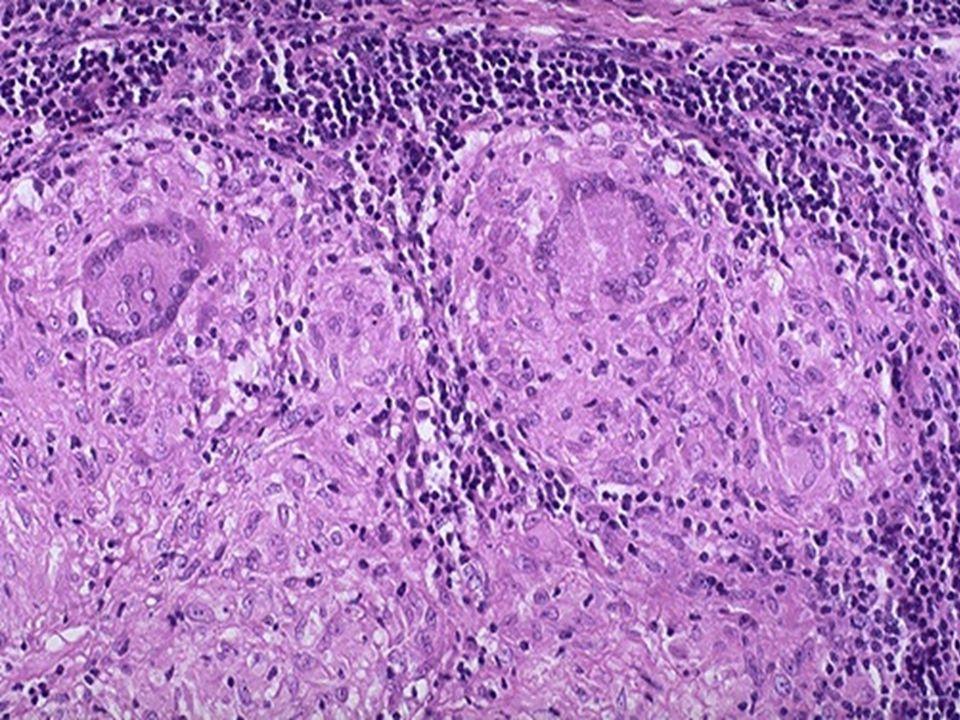 Non-caseating granulomas.