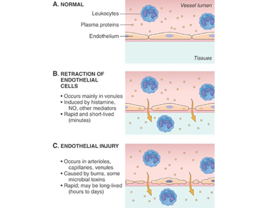Figure 2-3 Principal mechanisms of increased vascular permeability in inflammation, and their features and underlying causes.