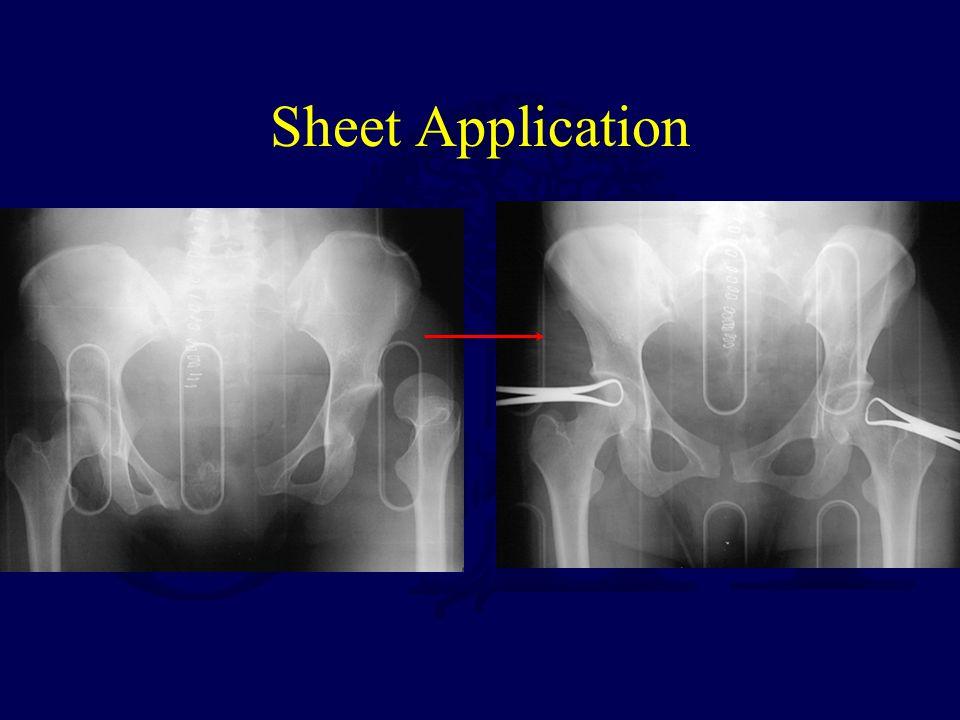 Sheet Application