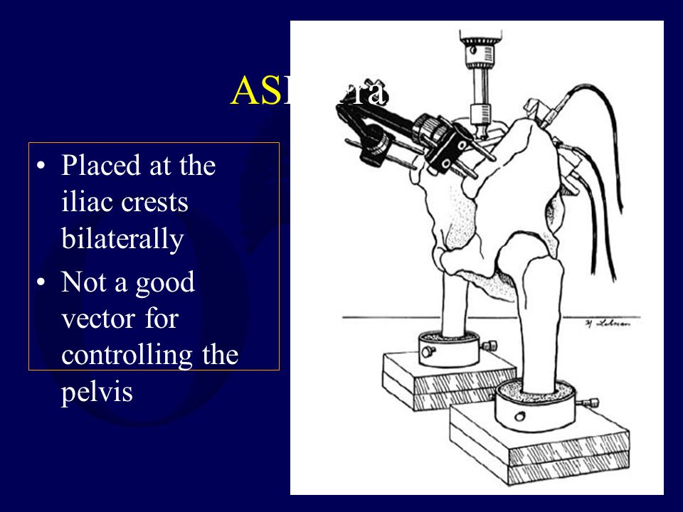 ASIS Frames Placed at the iliac crests bilaterally