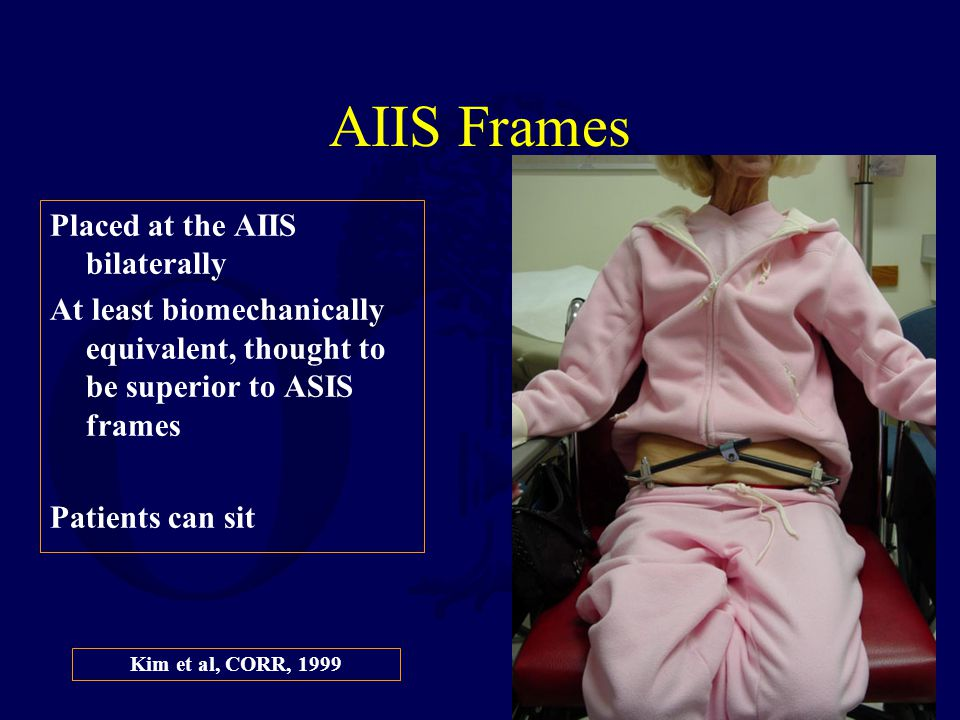 AIIS Frames Placed at the AIIS bilaterally