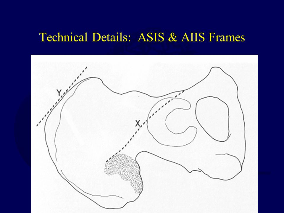 Technical Details: ASIS & AIIS Frames