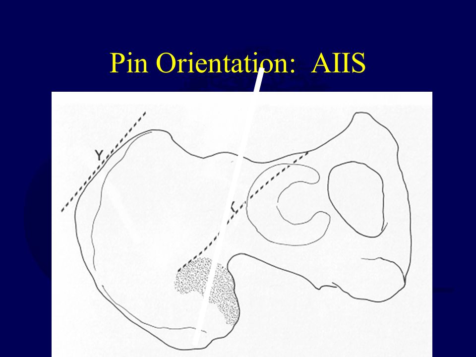 Pin Orientation: AIIS
