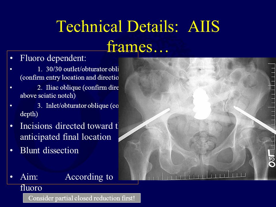 Technical Details: AIIS frames…