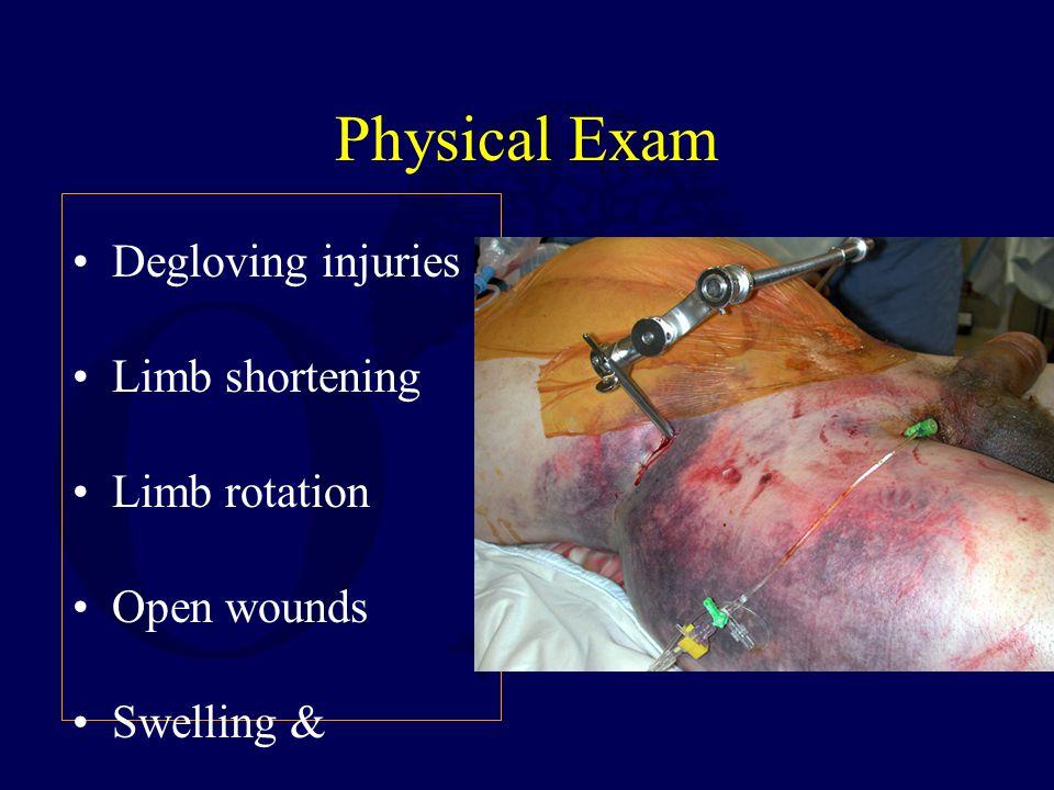 Physical Exam Degloving injuries Limb shortening Limb rotation