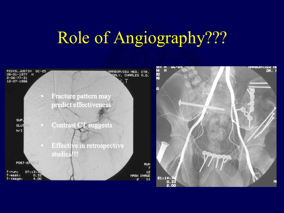 Role of Angiography Fracture pattern may predict effectiveness