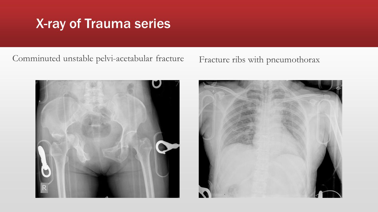 X-ray of Trauma series Comminuted unstable pelvi-acetabular fracture