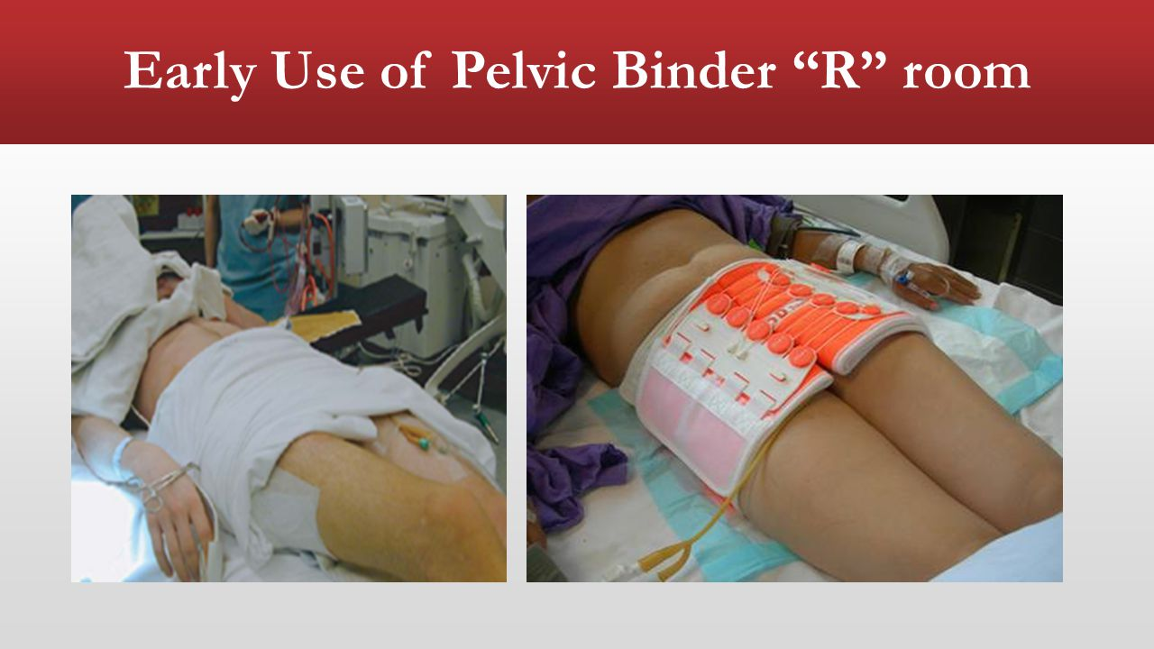 Early Use of Pelvic Binder R room