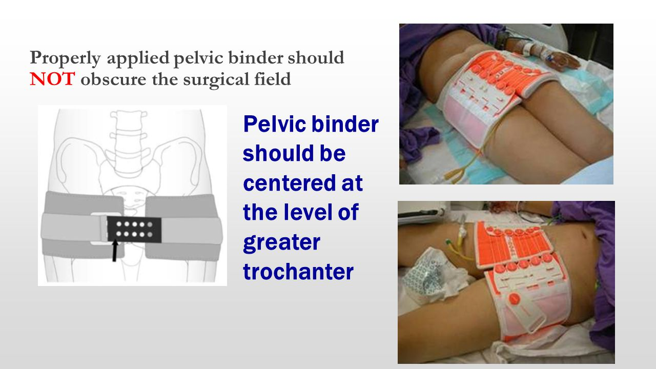 Pelvic binder should be centered at the level of greater trochanter