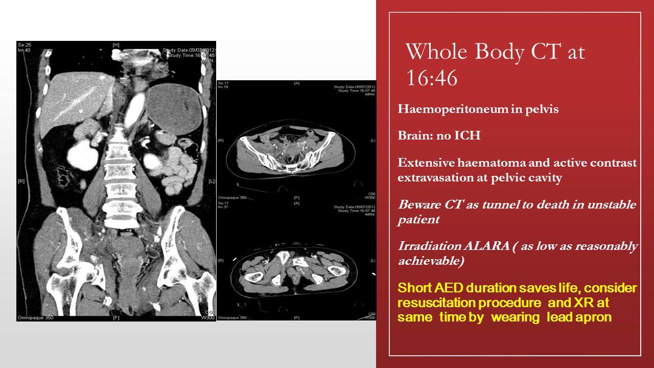 Whole Body CT at 16:46 Haemoperitoneum in pelvis Brain: no ICH