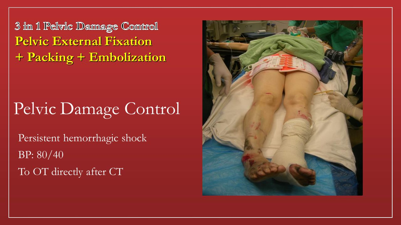 Pelvic Damage Control Pelvic External Fixation