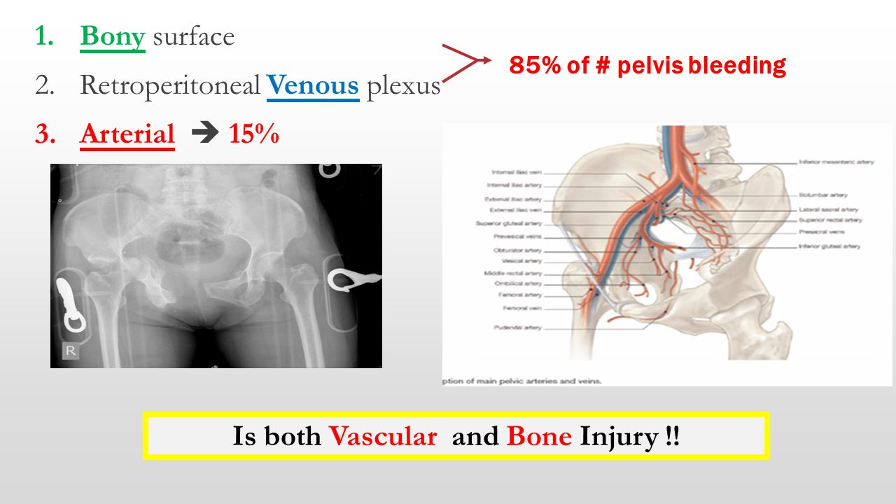 Is both Vascular and Bone Injury !!