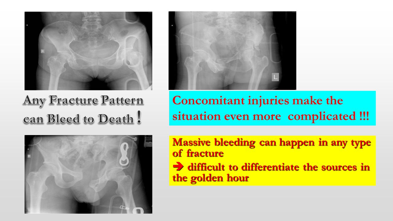 Any Fracture Pattern can Bleed to Death !