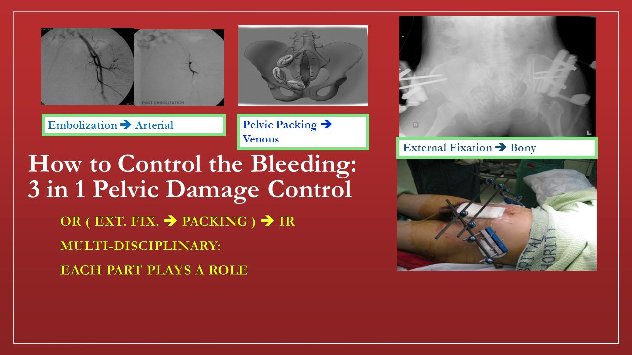 How to Control the Bleeding: 3 in 1 Pelvic Damage Control