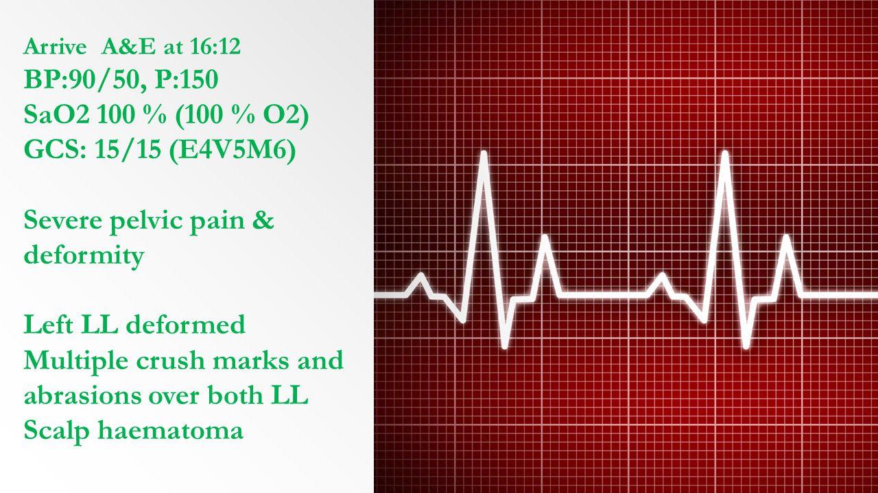 Severe pelvic pain & deformity