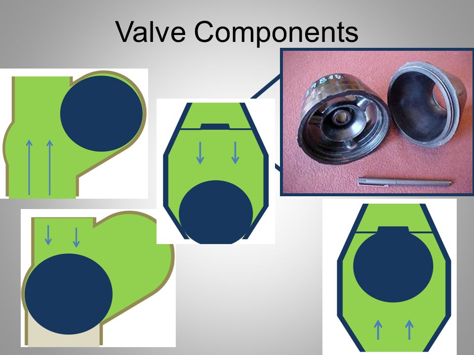 Valve Components