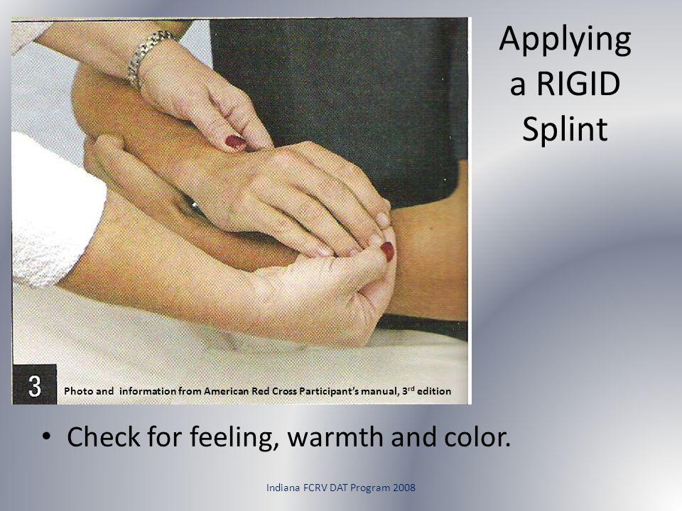 Applying a RIGID Splint