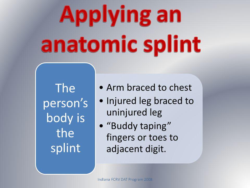 Applying an anatomic splint