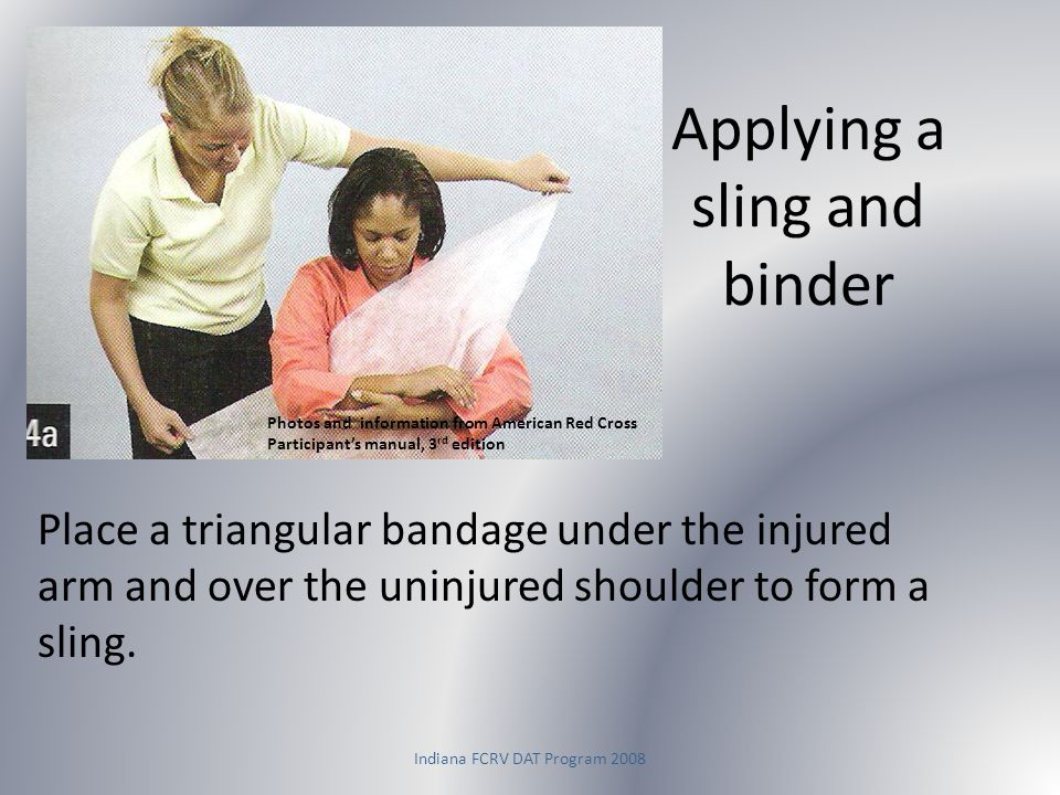 Applying a sling and binder