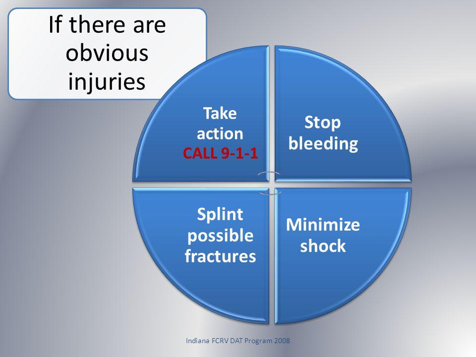 Splint possible fractures