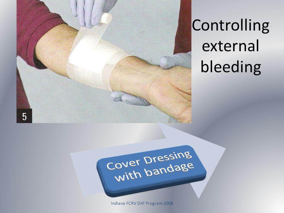 Controlling external bleeding
