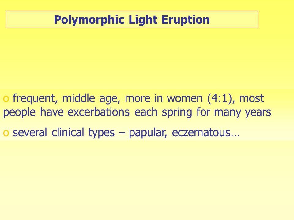 Polymorphic Light Eruption