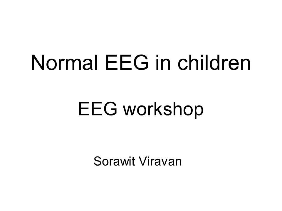 Normal EEG in children EEG workshop