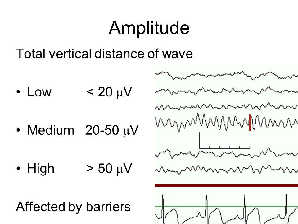 Amplitude Total vertical distance of wave Low < 20 μV