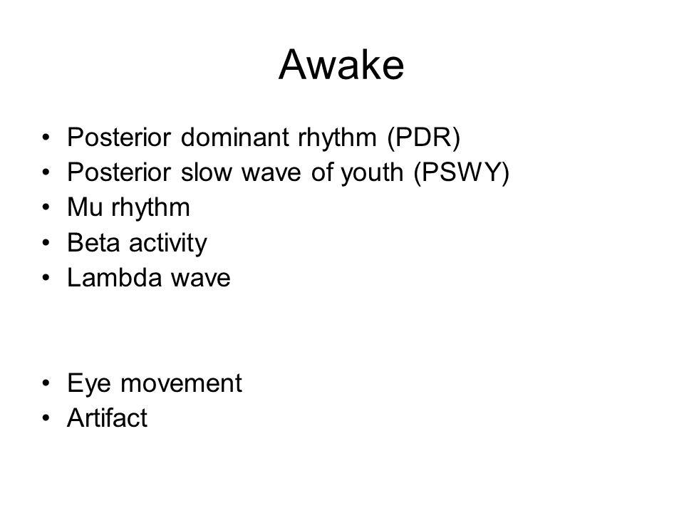 Awake Posterior dominant rhythm (PDR)