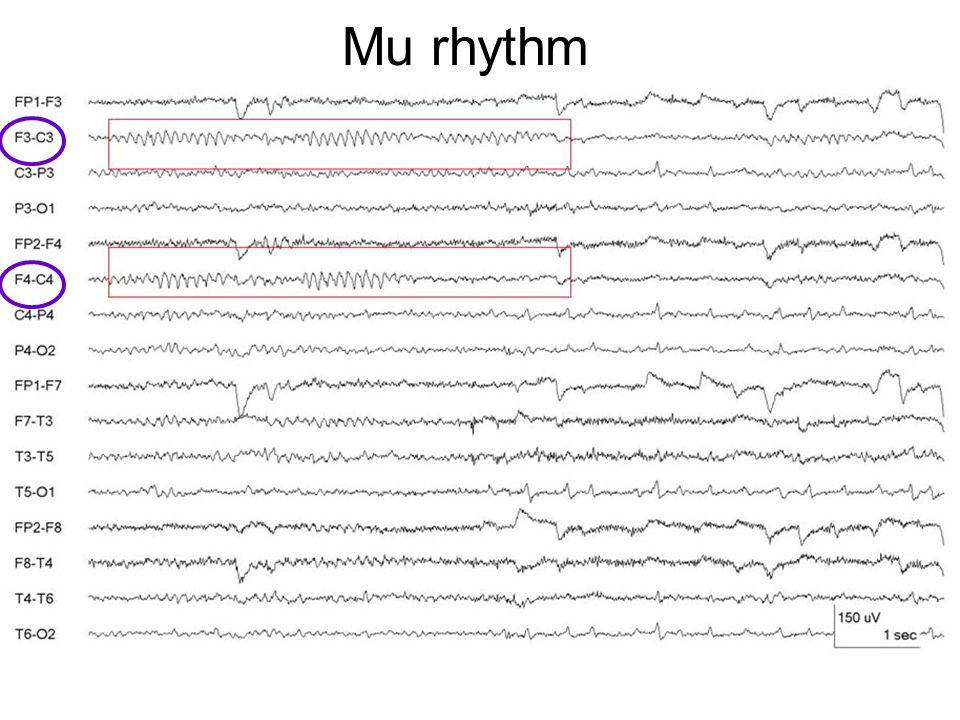 Mu rhythm